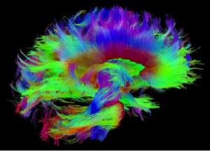 The Enigma of the Brain