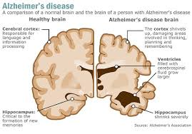 A New Cure-All for Alzheimer's?